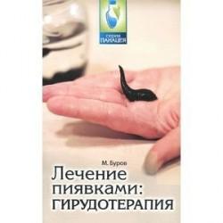 Лечение пиявками: гирудотерапия