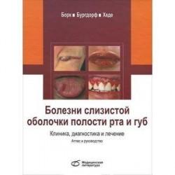 Болезни слизистой оболочки полости рта и губ. Клиника, диагностика и лечение