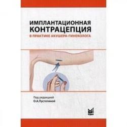 Имплантационная контрацепция в практике акушера-гинеколога