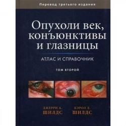 Опухоли век, конъюнктивы и глазницы. Атлас и справочник. Том 2