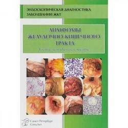 Лимфомы желудочно-кишечного тракта. Учебно-методическое пособие