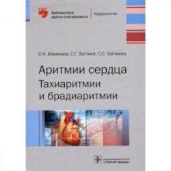Аритмии сердца. Тахиаритмии и брадиаритмии