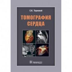 Томография сердца. Руководство для врачей