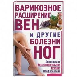 Варикозное расширение вен и другие болезни ног. Диагностика,восстановительное лечение, профилактика