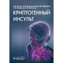 Криптогенный инсульт. Рукводство