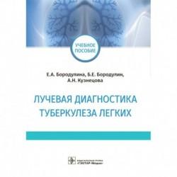 Лучевая диагностика туберкулеза легких
